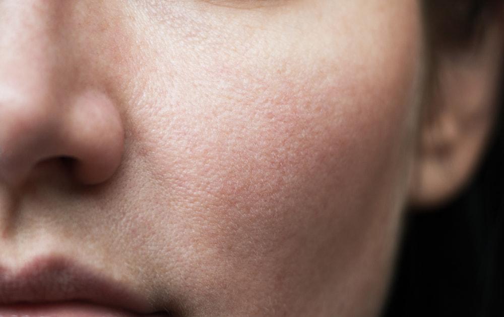 sintomi della pelle sensibile del viso